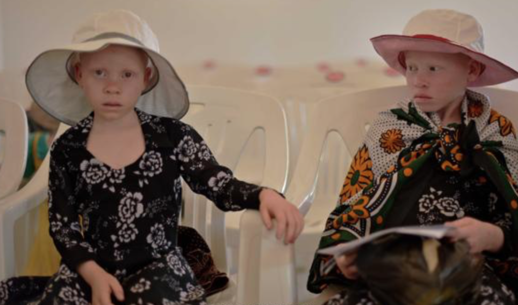 rare albino african babies- baby born with white hair shocks the world